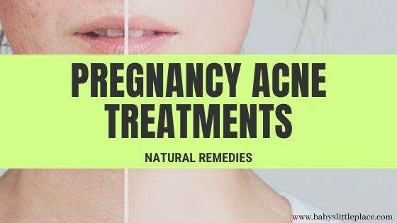 Best pregnancy acne treatments