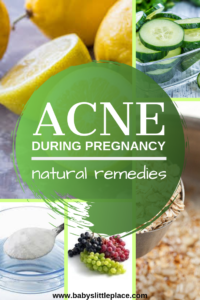 Best treatments and natural remedies for acne during pregnancy