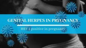 Genital Herpes in Pregnancy | HSV 2 positive in pregnancy